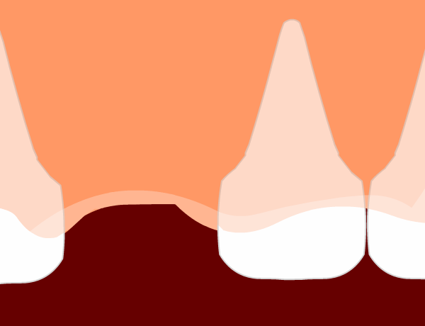 Image for Losing a Tooth